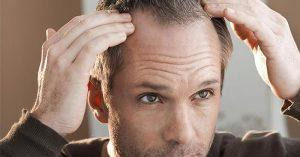 Men suffering from hair loss may get help from testosterone replacement therapy.