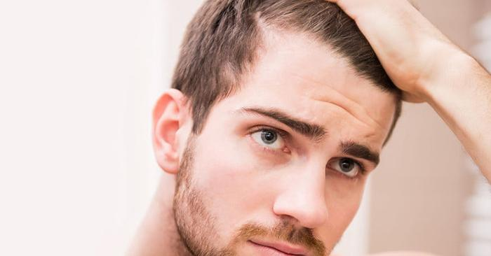 Does Low Testosterone Cause Hair Loss?